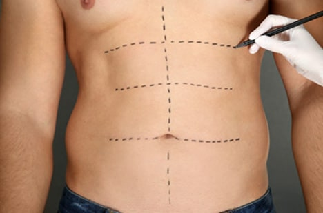 cocoona.gr8services.ae-artisticliposuction-lipo.jpg