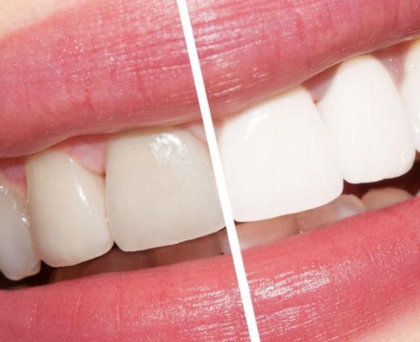 cocoona.gr8services.ae-toothwhiteningqanda-tooth.jpg
